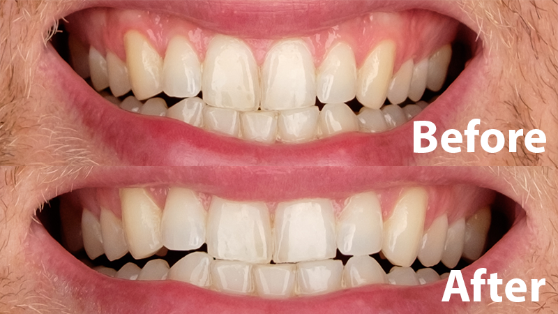 The Best Teeth Whitening For 2018  Reviewsm. Online Schools In Wisconsin Payday Loan Ohio. Google Travel Insurance Vaginal Mesh Attorney. Movers In Manchester Nh Mitel Ip Phone System. Schools For Social Worker Burbank Bail Bonds. Reflexology Schools Online The Best E Liquid. List Of Mnc Companies In Bangalore. Chicago Web Development Maui Community Clinic. Thousand Oaks Insurance What To Put On A Scar